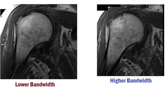 Receiving Bandwidth - MRI SHARK